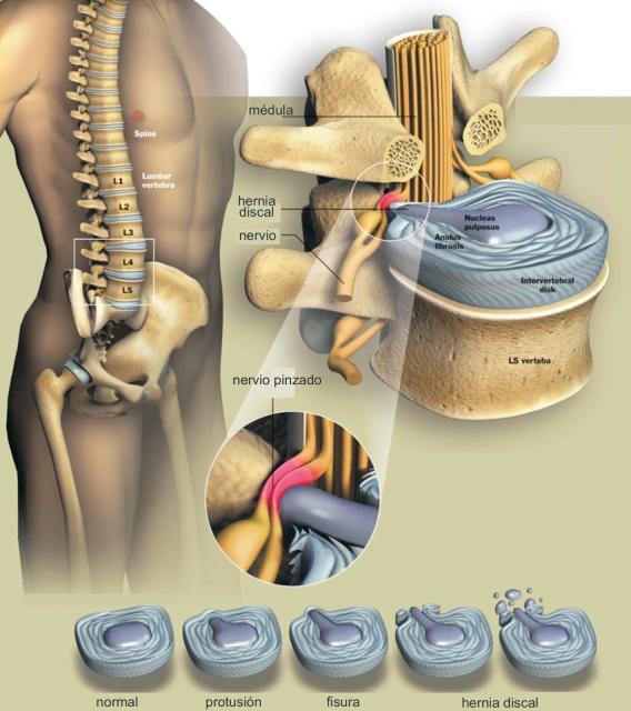 Los rayos X a la osteocondrosis sheynogo y el departamento de pecho